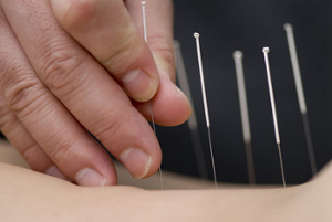 Seirin needles from Japan used to reduce pain